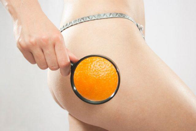 Cellulite: i migliori rimedi su come combattere la ritenzione idrica