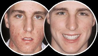 Maschera da argilla bianca per la persona da segni di posti