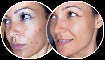 Il pigmentary nota su una faccia sotto trattamento di occhi